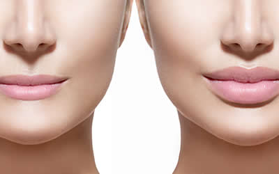 Dermal fillers and lip fillers in Kent