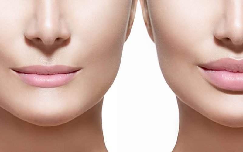 Lip fillers, anti-wrinkle injections Kent